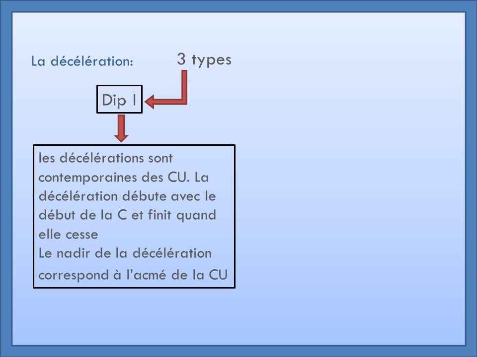 La décélération: 3 types Dip I les décélérations sont contemporaines des CU. La décélération débute avec le début de la C et finit quand elle cesse Le