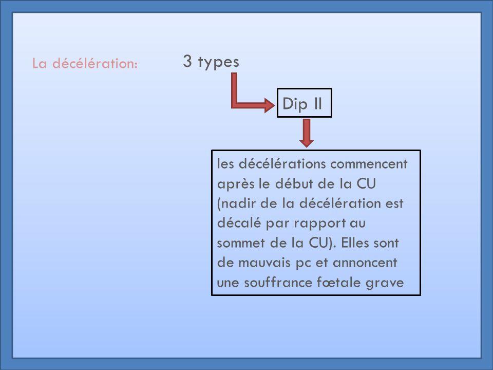 La décélération: 3 types Dip II les décélérations commencent après le début de la CU (nadir de la décélération est décalé par rapport au sommet de la