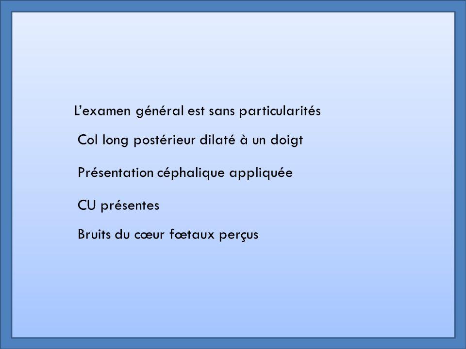 Généralités sur l'ERCF