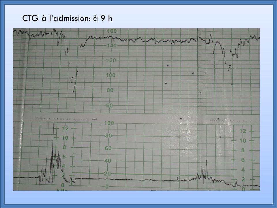 RCF normal: Du rythme de base Des oscillations De la réactivité Pour interpréter un RCF il faut tenir compte : Retour De la présence ou non d'anomalies telle qu'une décélération