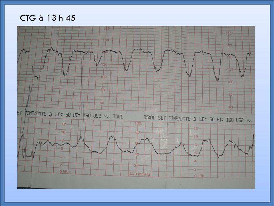 Le rythme de base Est la valeur autour de laquelle varie le rythme cardiaque fœtal Schématiquement, il s'agit de la moyenne des fluctuations Un rythme de base normal est situé entre 120 et 160 bpm Retour