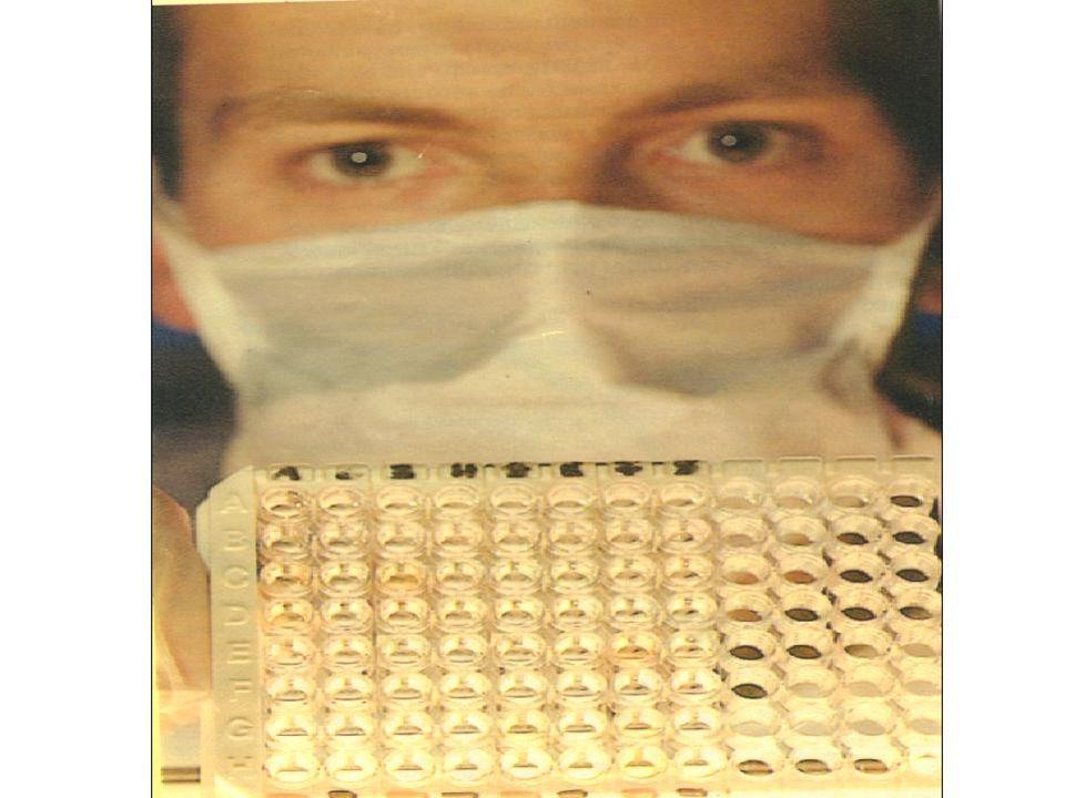 3-1 : Le verdict du sérodiagnostic.. 3-2 : La quantification du virus. III - LES METHODES DE DOAGNOSTIQUE PROGRESSENT CONSTAMMENT