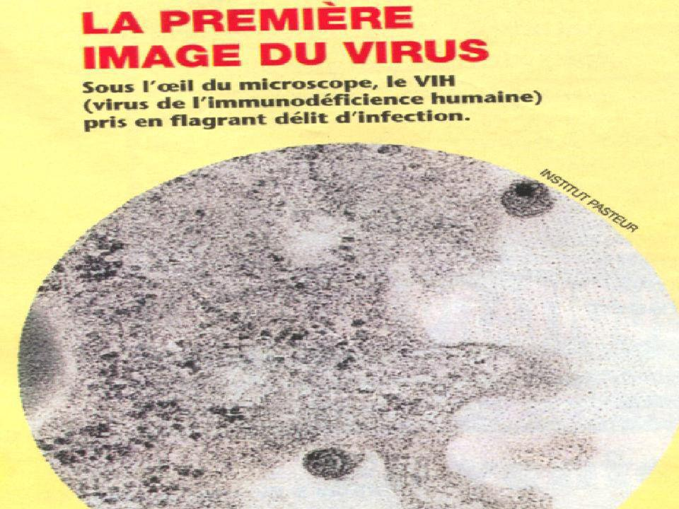 I - UN MAL QUI REPAND LA TERREUR 1-1 : Le mystérieux sida. 1-2 : L ' identification du virus.