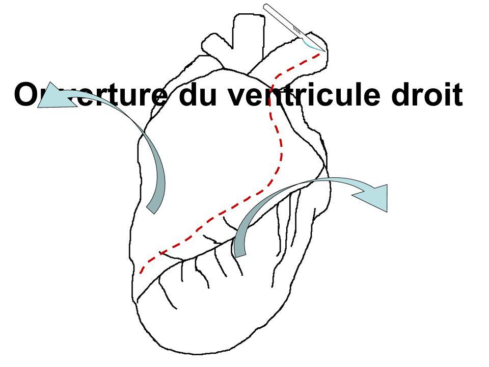 Ouverture du ventricule droit