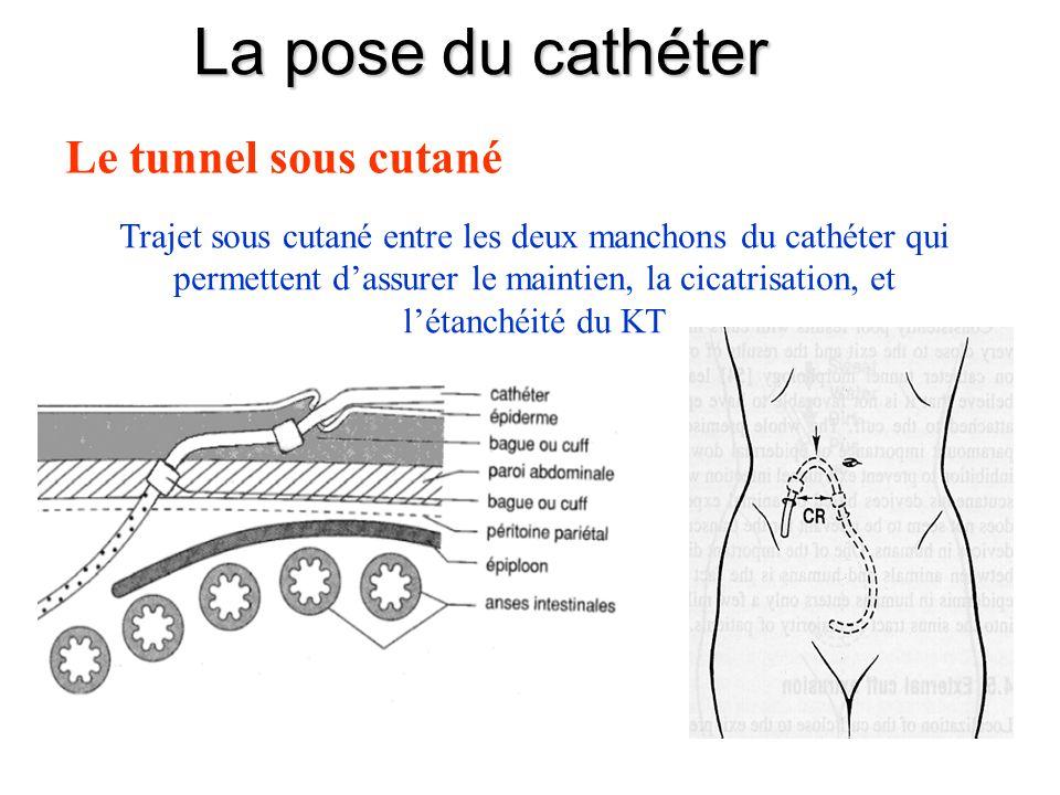 Trajet sous cutané entre les deux manchons du cathéter qui permettent d'assurer le maintien, la cicatrisation, et l'étanchéité du KT Le tunnel sous cu