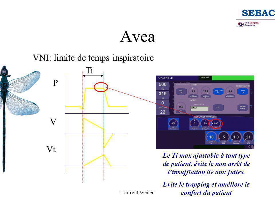 Laurent Weiler Avea VNI: limite de temps inspiratoire P V Vt Le Ti max ajustable à tout type de patient, évite le non arrêt de l'insufflation lié aux