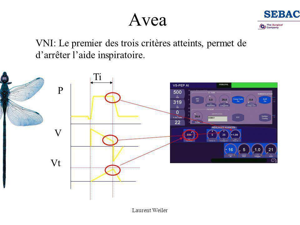 Laurent Weiler Sélection des réglages avancés de l'AI.