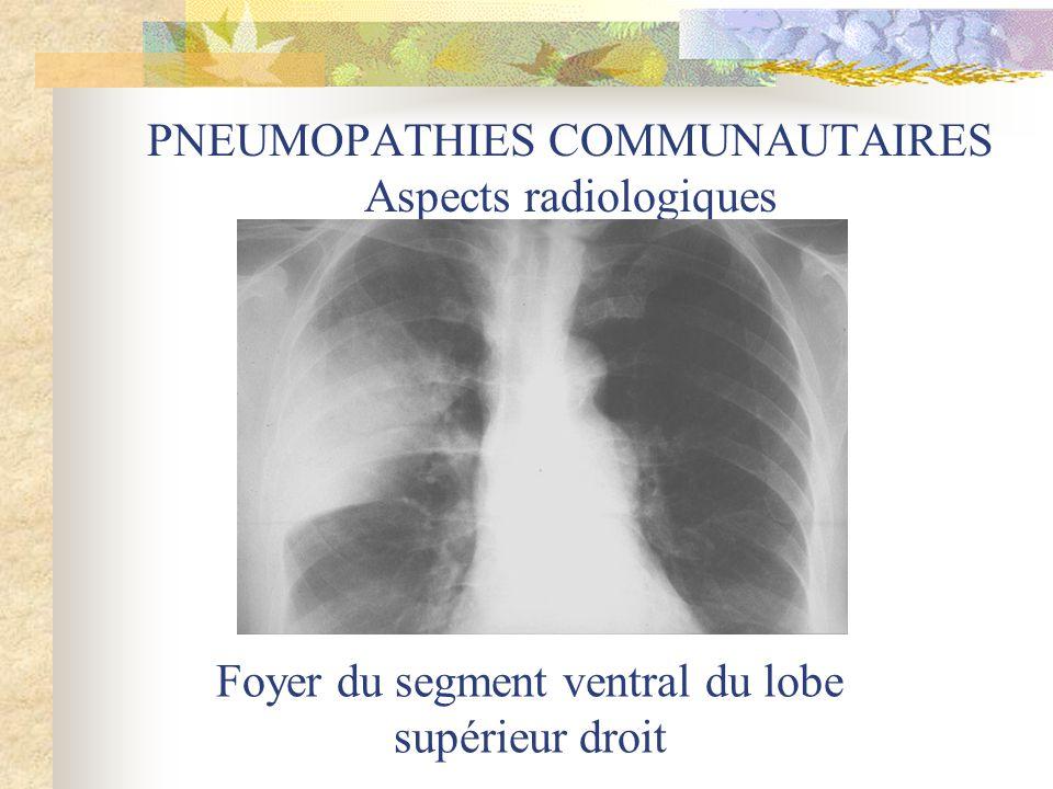 PNEUMOPATHIES COMMUNAUTAIRES Aspects radiologiques Foyer du segment ventral du lobe supérieur droit