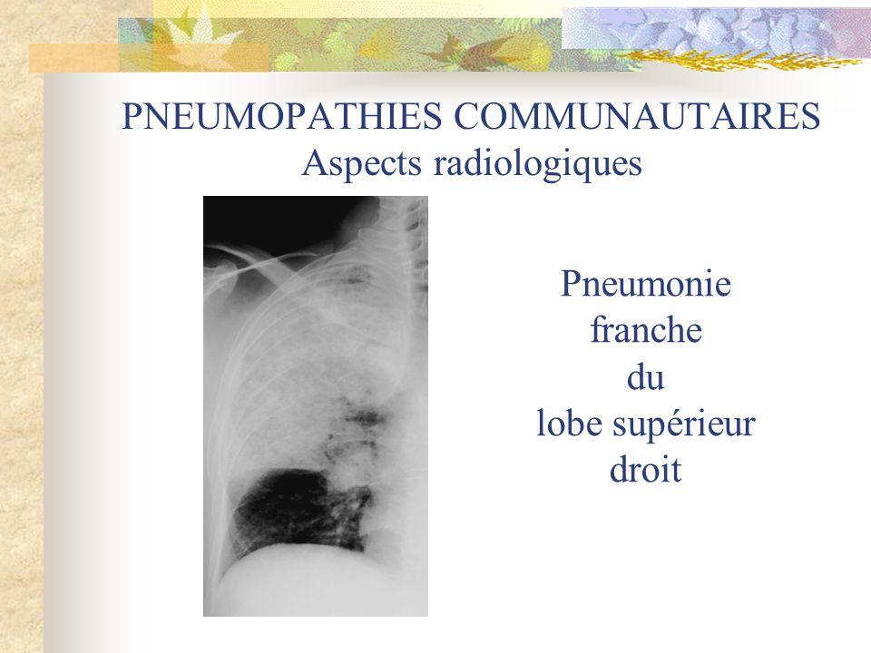 PNEUMOPATHIES COMMUNAUTAIRES Aspects radiologiques Pneumonie franche du lobe supérieur droit