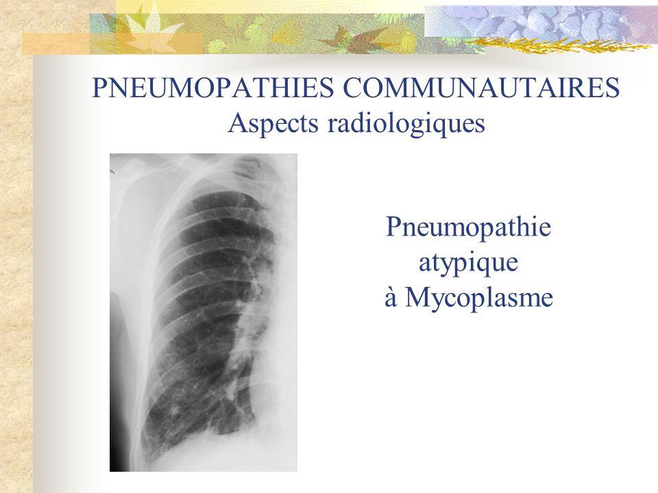 PNEUMOPATHIES COMMUNAUTAIRES Aspects radiologiques Pneumopathie atypique à Mycoplasme