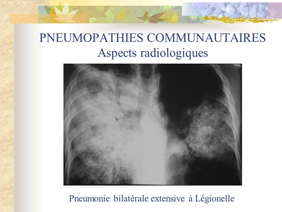 PNEUMOPATHIES COMMUNAUTAIRES Aspects radiologiques Pneumonie bilatérale extensive à Légionelle