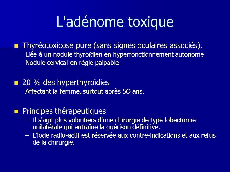 L'adénome toxique   Thyréotoxicose pure (sans signes oculaires associés). Liée à un nodule thyroïdien en hyperfonctionnement autonome Nodule cervica