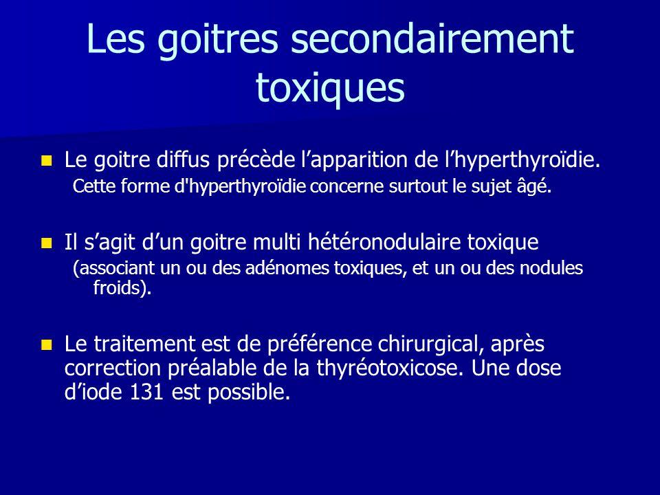 Les goitres secondairement toxiques   Le goitre diffus précède l'apparition de l'hyperthyroïdie. Cette forme d'hyperthyroïdie concerne surtout le su