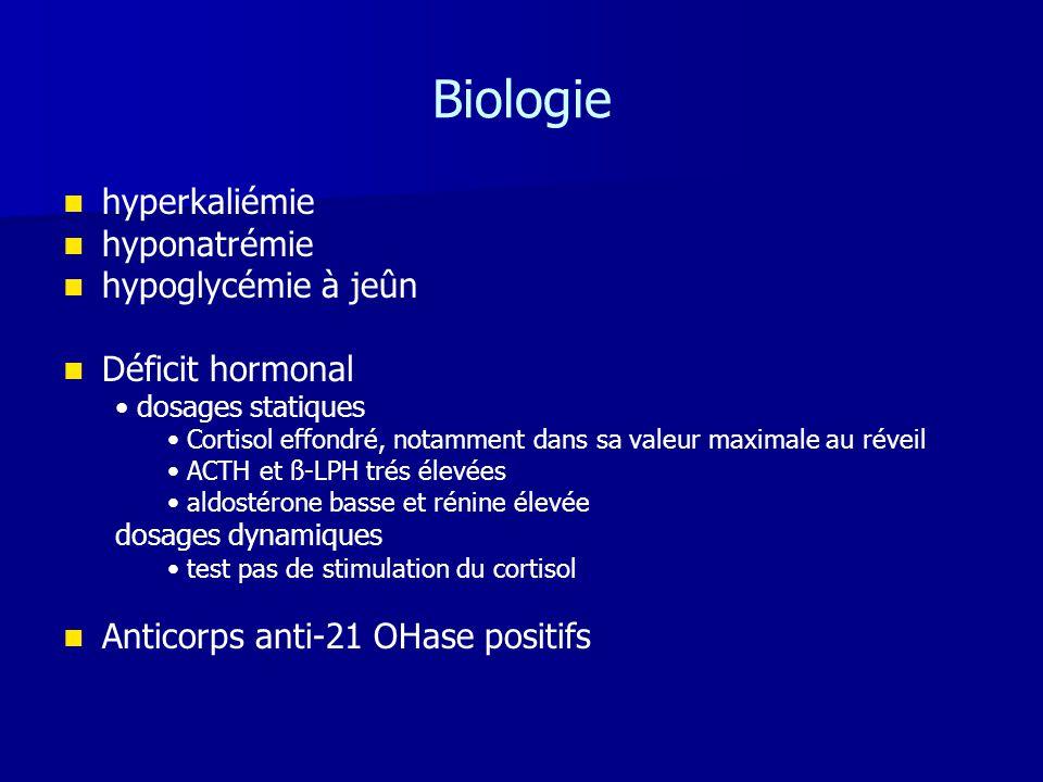 Biologie   hyperkaliémie   hyponatrémie   hypoglycémie à jeûn   Déficit hormonal • dosages statiques • Cortisol effondré, notamment dans sa va