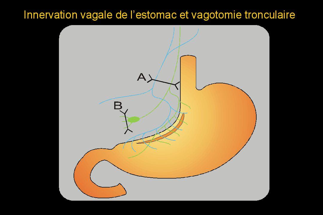 Physiologie de la Sécrétion Acide Gastrique André BADO bado@bichat.inserm.fr E-02 Physiologie digestive Centre de Recherche Biomédicale Bichat Beaujon (CRB3) INSERM U773, Paris