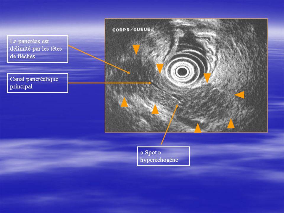 Le pancréas est délimité par les têtes de flèches Canal pancréatique principal « Spot » hyperéchogène