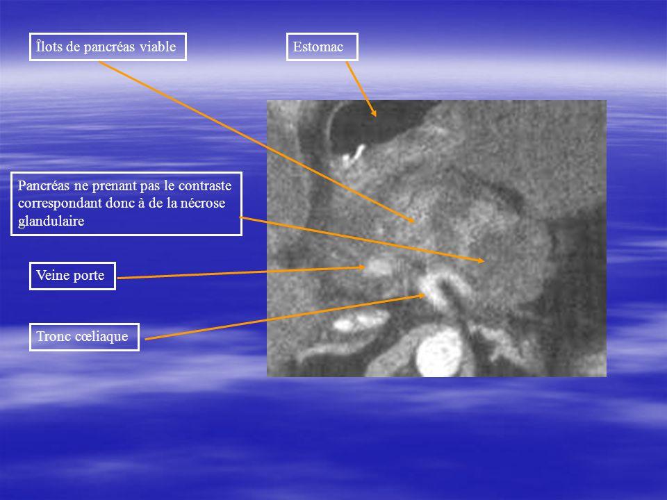 Îlots de pancréas viable Pancréas ne prenant pas le contraste correspondant donc à de la nécrose glandulaire Tronc cœliaque Veine porte Estomac