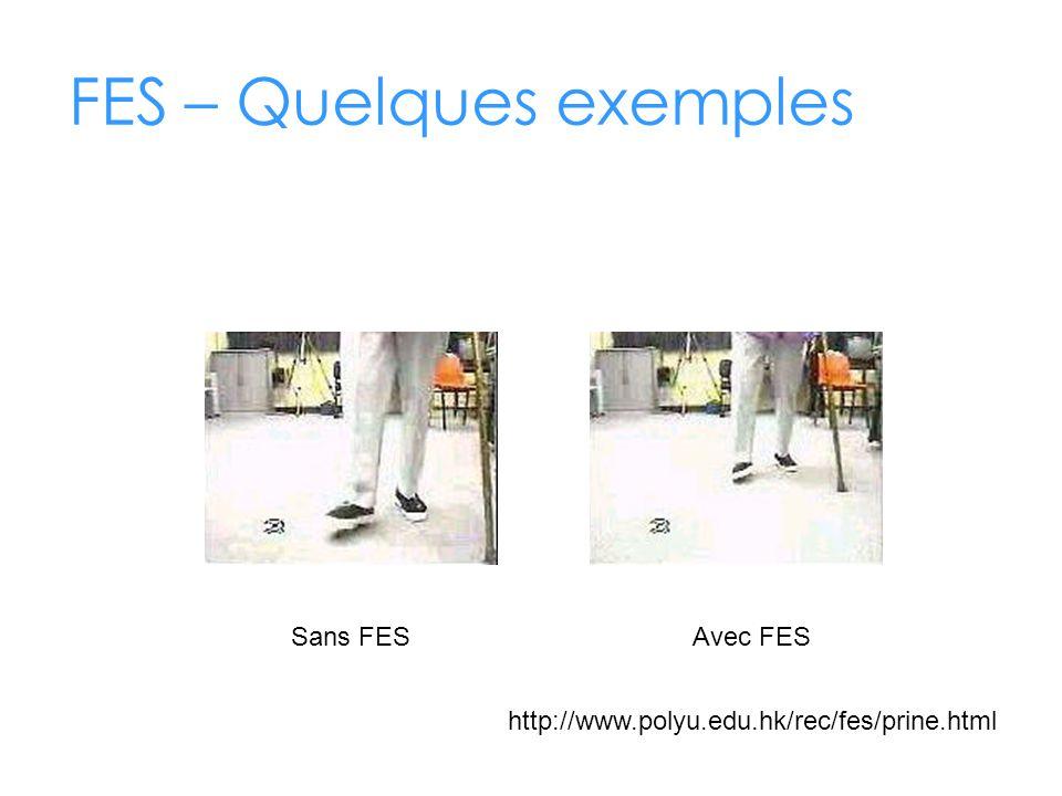 FES – Quelques exemples Sans FESAvec FES http://www.polyu.edu.hk/rec/fes/prine.html