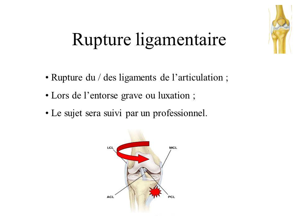 Luxation • Perte de contact totale des surfaces articulaires entre elles ; • Due à un faux mouvement, ou a une sollicitation extérieur d'un membre ; •