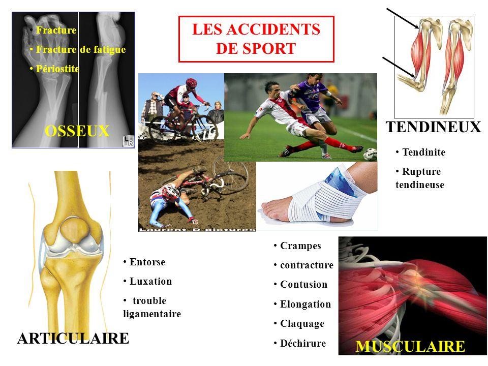 OSSEUX ARTICULAIRE TENDINEUX MUSCULAIRE • Fracture • Fracture de fatigue • Périostite • Entorse • Luxation • trouble ligamentaire • Crampes • contracture • Contusion • Elongation • Claquage • Déchirure • Tendinite • Rupture tendineuse LES ACCIDENTS DE SPORT