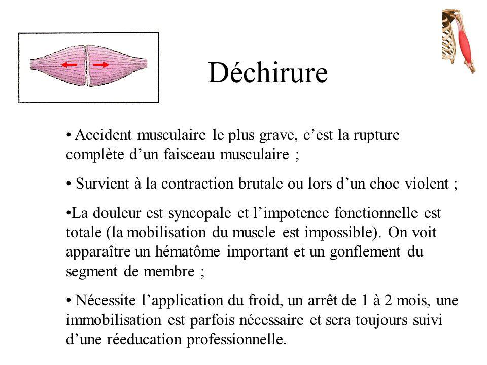 Claquage • Déchirure de quelques fibres musculaires ; • Due à un effort intense et violent ou d'une agresion externe ; • Il s'accompagne d'une douleur