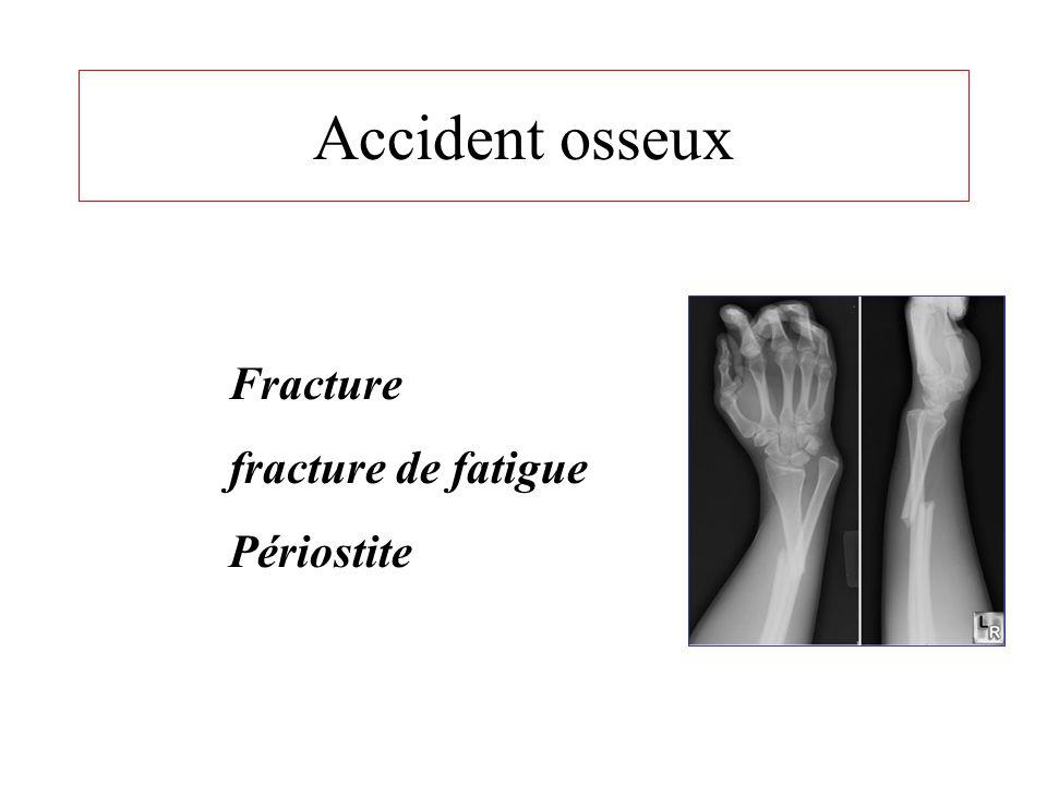 OSSEUX ARTICULAIRE TENDINEUX MUSCULAIRE • Fracture • Fracture de fatigue • Périostite • Entorse • Luxation • trouble ligamentaire • Crampes • contract