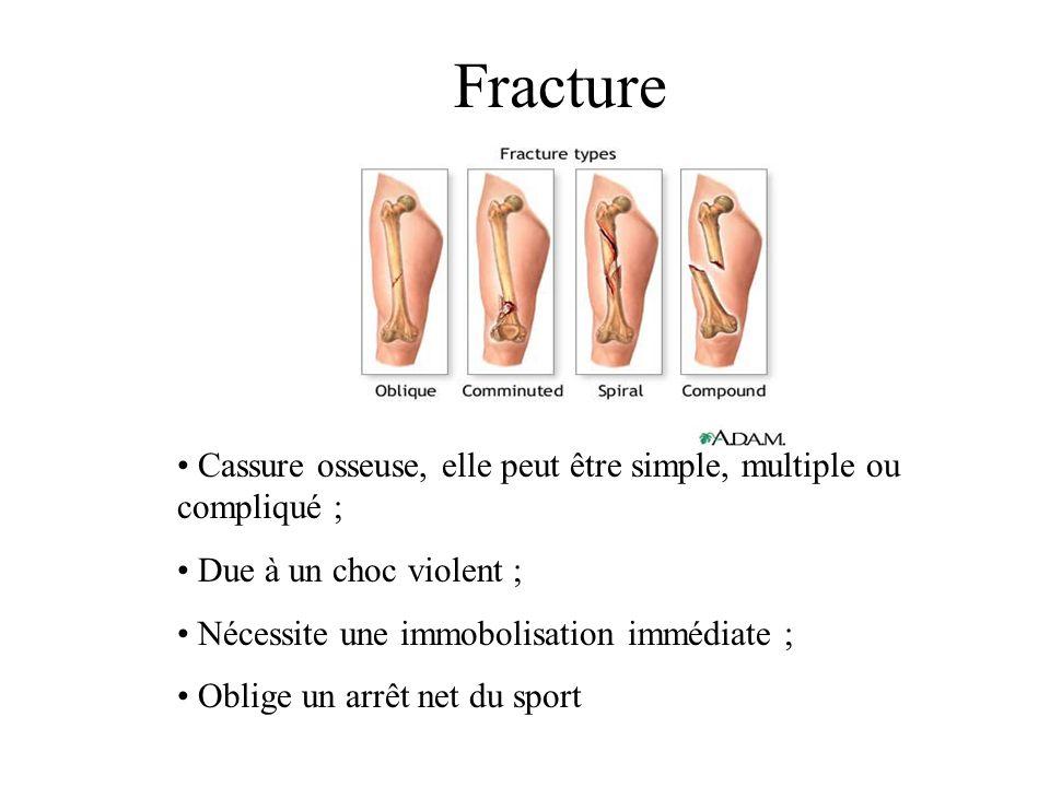 Fracture • Cassure osseuse, elle peut être simple, multiple ou compliqué ; • Due à un choc violent ; • Nécessite une immobolisation immédiate ; • Oblige un arrêt net du sport
