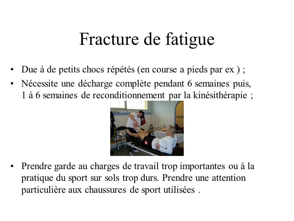Fracture • Cassure osseuse, elle peut être simple, multiple ou compliqué ; • Due à un choc violent ; • Nécessite une immobolisation immédiate ; • Obli