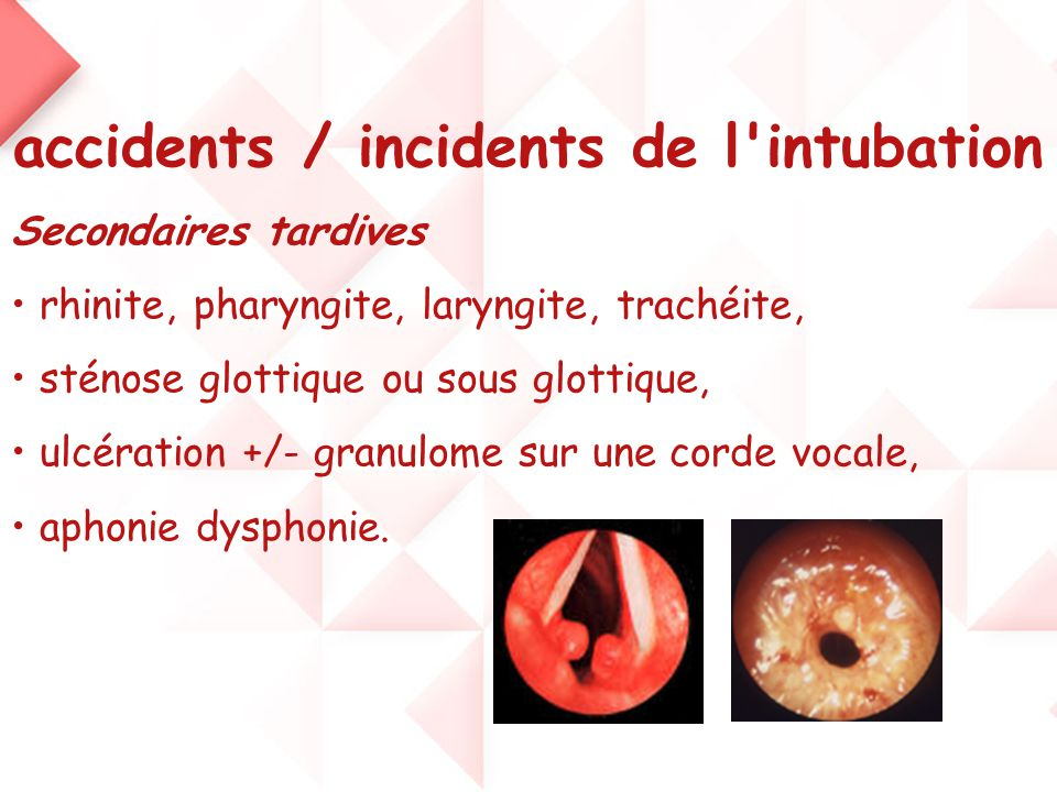accidents / incidents de l'intubation Secondaires tardives • rhinite, pharyngite, laryngite, trachéite, • sténose glottique ou sous glottique, • ulcér