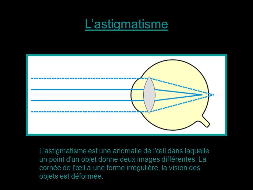 L'astigmatisme est une anomalie de l'œil dans laquelle un point d'un objet donne deux images différentes. La cornée de l'œil a une forme irrégulière,