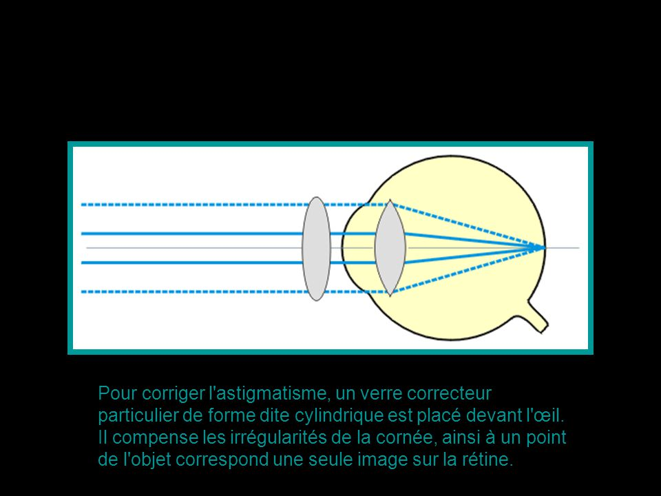 Pour corriger l'astigmatisme, un verre correcteur particulier de forme dite cylindrique est placé devant l'œil. Il compense les irrégularités de la co