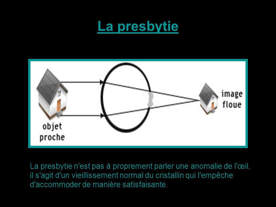 La presbytie n'est pas à proprement parler une anomalie de l'œil, il s'agit d'un vieillissement normal du cristallin qui l'empêche d'accommoder de man