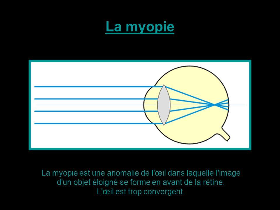 La myopie est une anomalie de l'œil dans laquelle l'image d'un objet éloigné se forme en avant de la rétine. L'œil est trop convergent. La myopie