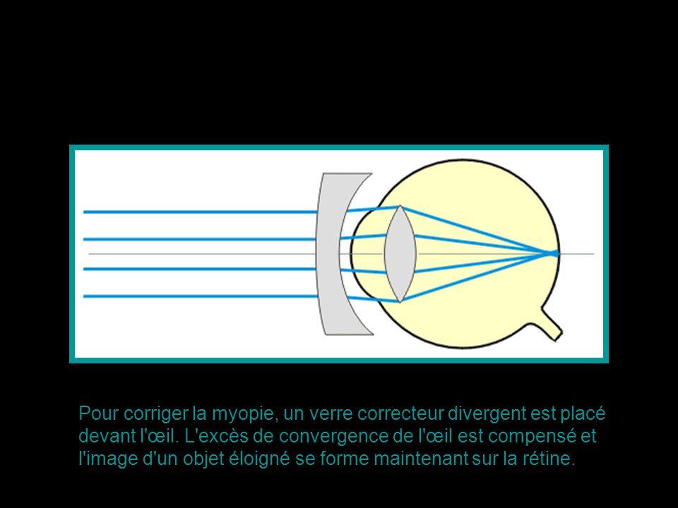 Pour corriger la myopie, un verre correcteur divergent est placé devant l'œil. L'excès de convergence de l'œil est compensé et l'image d'un objet éloi