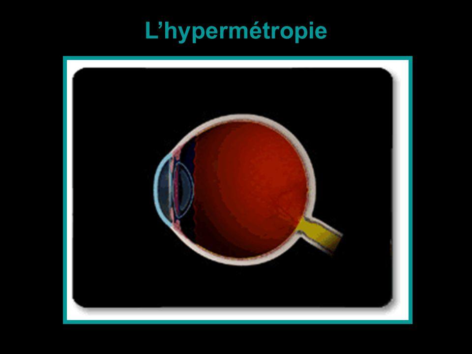Pour corriger l hypermétropie, un verre correcteur convergent est placé devant l œil.