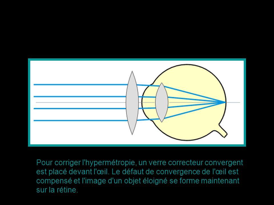L astigmatisme est une anomalie de l œil dans laquelle un point d un objet donne deux images différentes.