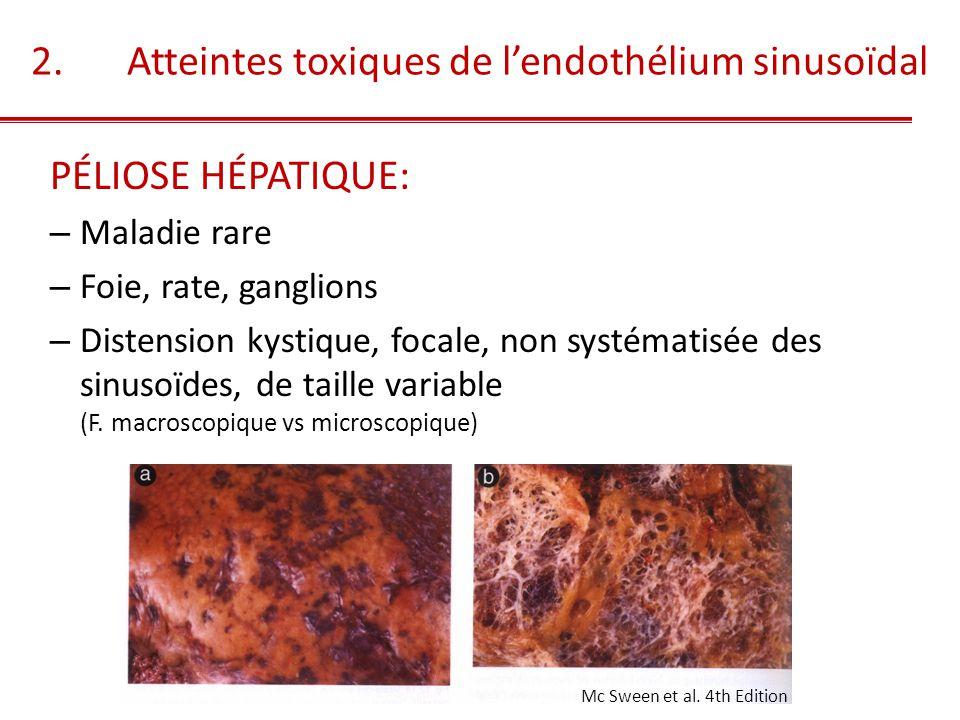 PÉLIOSE HÉPATIQUE: – Destruction initiale de la barrière endothéliale – Contenu: hématie + fibrine + débris 2.ATTEINTE DE L'ENDOTHELIUM SINUSOIDAL