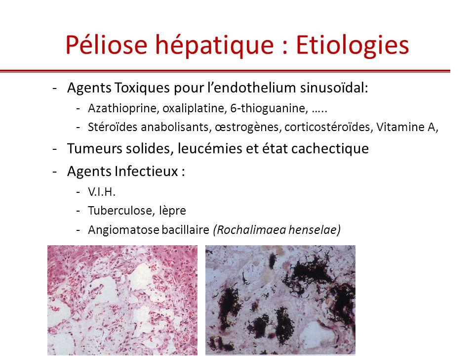 Pathologie du sinusoïde hépatique 1.Capillarisation des sinusoïdes 2.Atteinte toxique de l'endothélium sinusoïdal 3.Dilatation sinusoïdale 4.Dépôts sinusoidaux