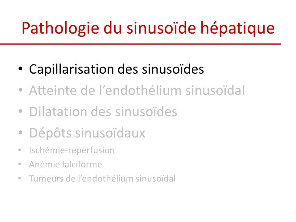 Mécanisme adaptatif non spécifique : • Fibrose extensive et Cirrhoses • Alcool et syndrome métabolique • Vieillissement 1.Capillarisation des sinusoïdes hépatiques :