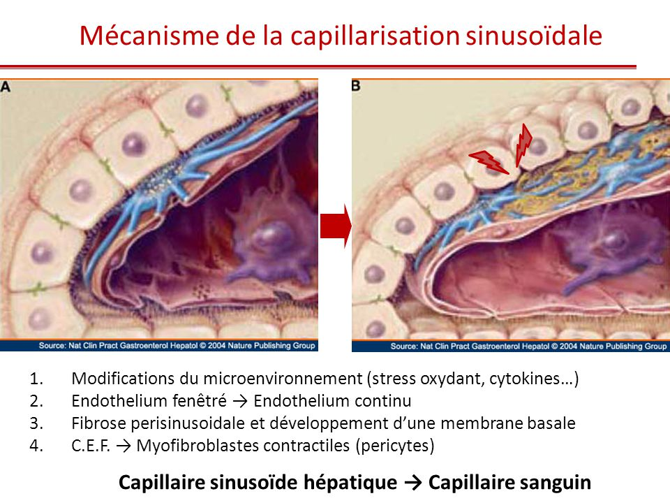 Actine Musculaire Lisse