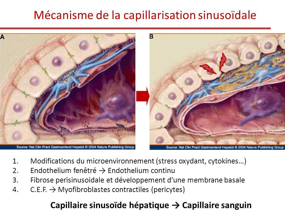 Mécanisme de la capillarisation sinusoïdale 1. Modifications du microenvironnement (stress oxydant, cytokines…) 2. Endothelium fenêtré → Endothelium c