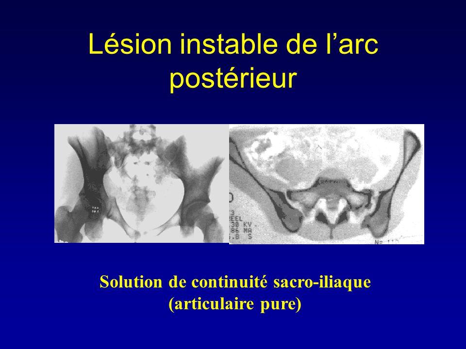 Lésion instable de l'arc postérieur Solution de continuité sacro-iliaque (articulaire pure)
