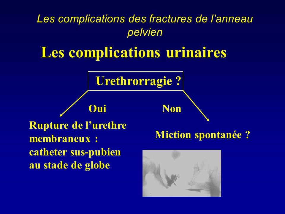 Les complications des fractures de l'anneau pelvien Les complications urinaires Urethrorragie ? Rupture de l'urethre membraneux : catheter sus-pubien