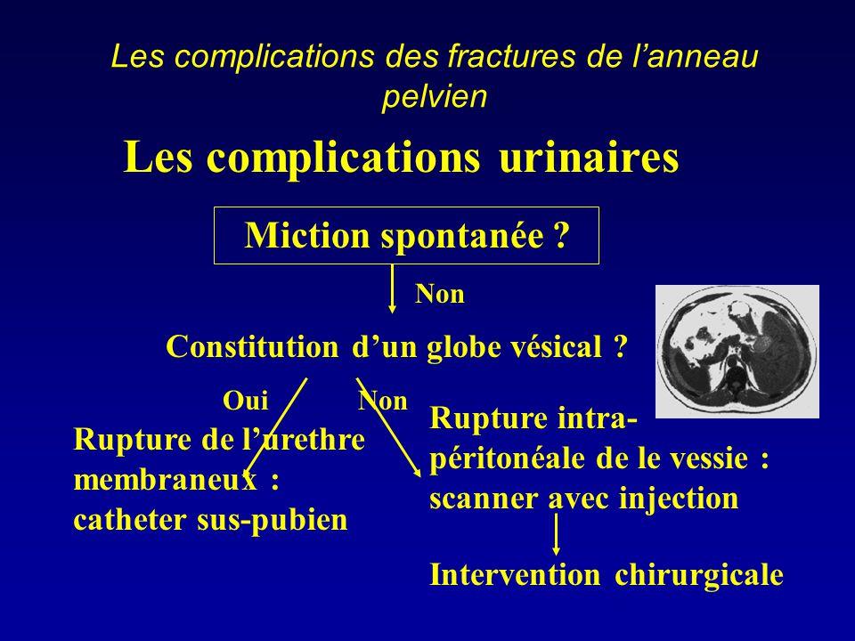 Les complications des fractures de l'anneau pelvien Les complications urinaires Miction spontanée ? Rupture de l'urethre membraneux : catheter sus-pub