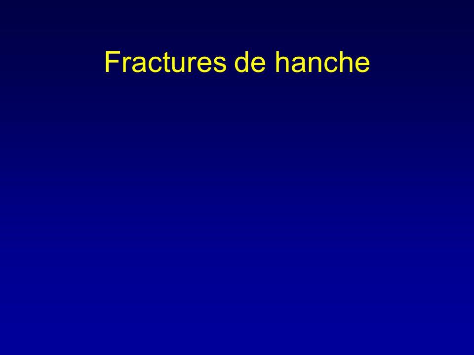 Fractures de hanche