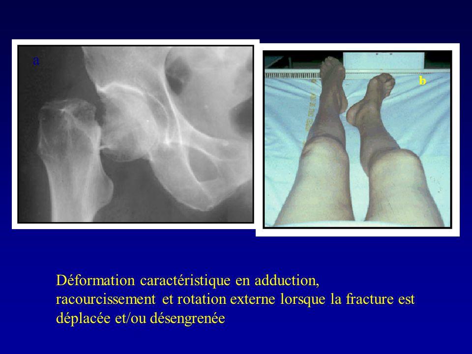 a b Déformation caractéristique en adduction, racourcissement et rotation externe lorsque la fracture est déplacée et/ou désengrenée