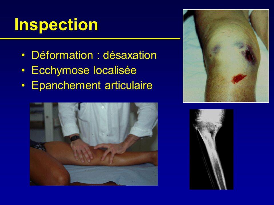Inspection •Déformation : désaxation •Ecchymose localisée •Epanchement articulaire