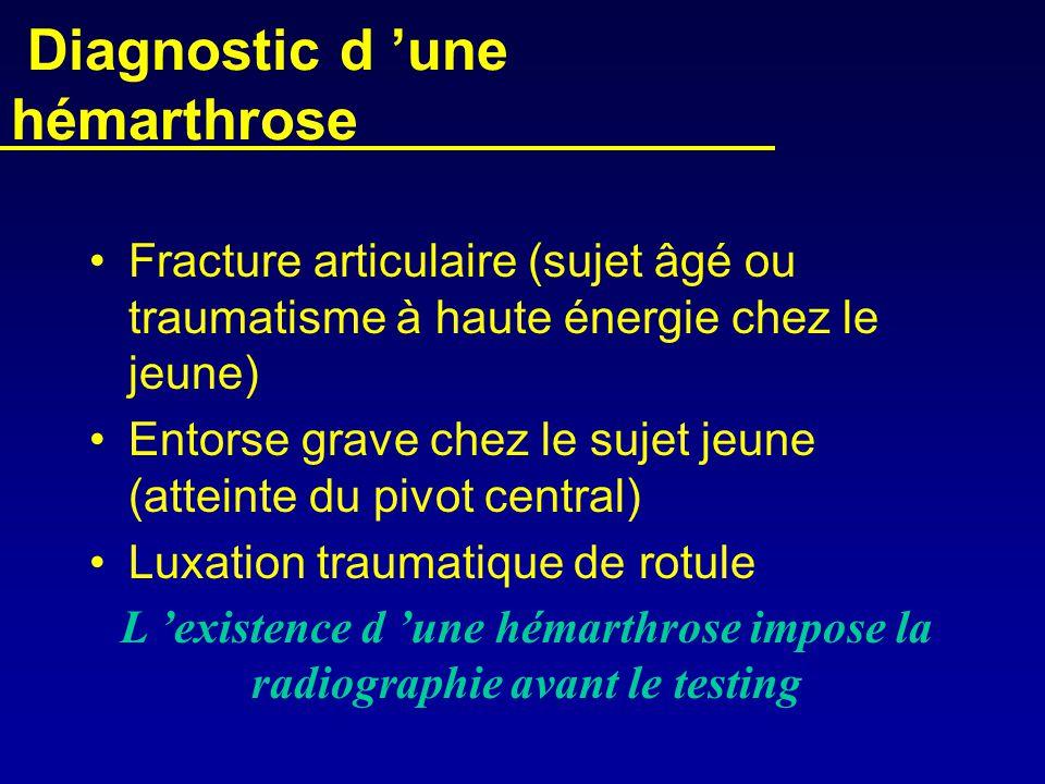 Diagnostic d 'une hémarthrose •Fracture articulaire (sujet âgé ou traumatisme à haute énergie chez le jeune) •Entorse grave chez le sujet jeune (attei