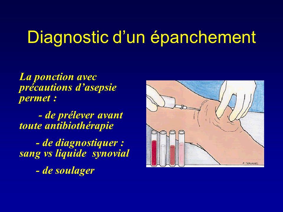 Diagnostic d'un épanchement La ponction avec précautions d'asepsie permet : - de prélever avant toute antibiothérapie - de diagnostiquer : sang vs liq