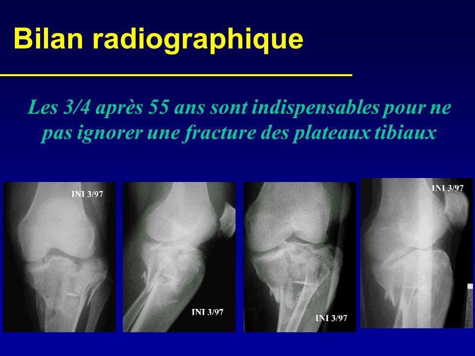 Bilan radiographique Les 3/4 après 55 ans sont indispensables pour ne pas ignorer une fracture des plateaux tibiaux